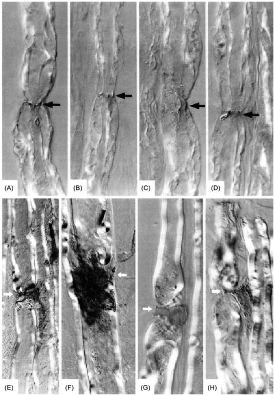 Acute motor axonal neuropathy