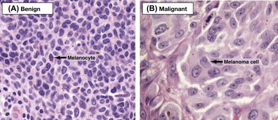 Cancer biology benign tumors. Squamous papilloma icd 10 - Cancer biology benign tumors