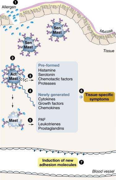 Immune Hypersensitivity - ScienceDirect