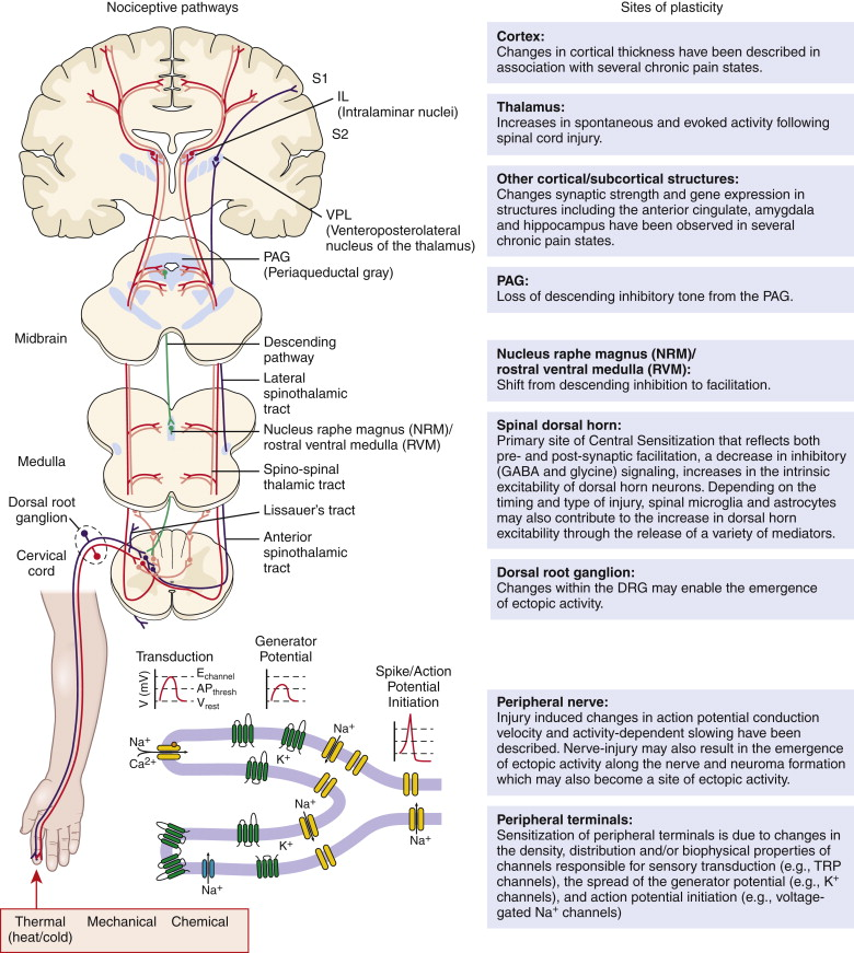 Pain: From Neurobiology to Disease - ScienceDirect