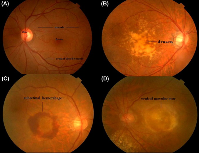 Age Related Macular Degeneration An Overview Sciencedirect Topics