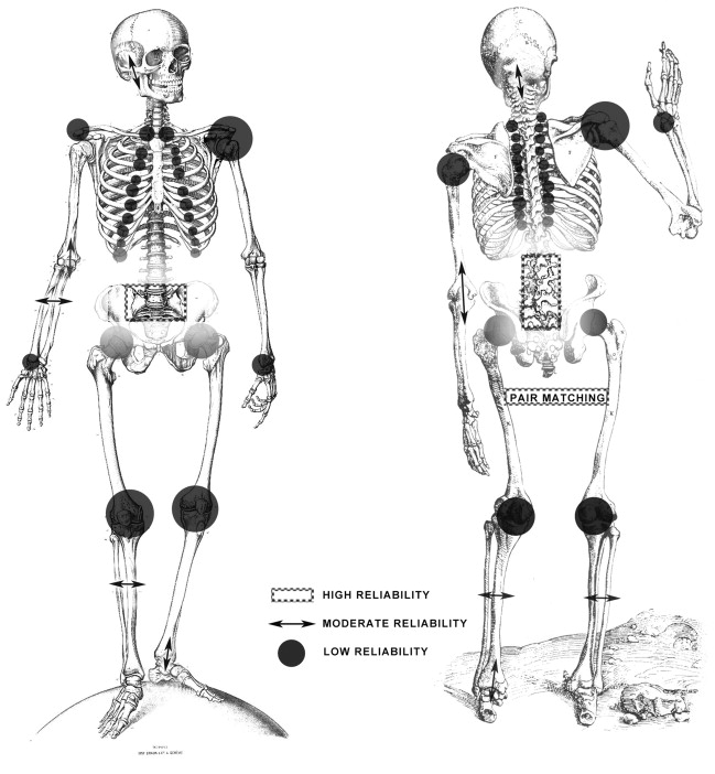 Osteometry An Overview ScienceDirect Topics