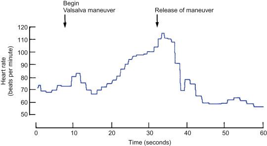 Valsalva Maneuver - an overview | ScienceDirect Topics