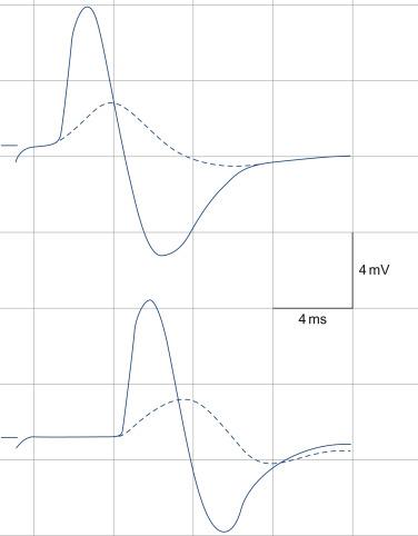 block diagram pulse oximeter box wiring diagram  critical illness polyneuropathy an overview sciencedirect topics block diagram block diagram pulse oximeter