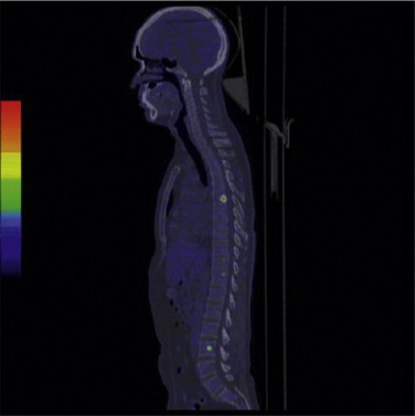 Imaging Agent - an overview   ScienceDirect Topics