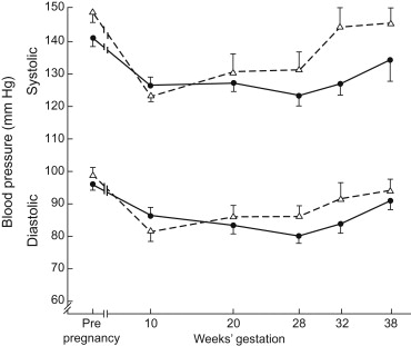 Chronic Hypertension and Pregnancy - ScienceDirect