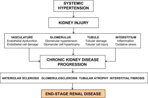 Management Of Hypertension In Chronic Kidney Disease Sciencedirect