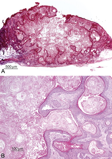 Sebaceous Gland Hyperplasia - an overview   ScienceDirect Topics