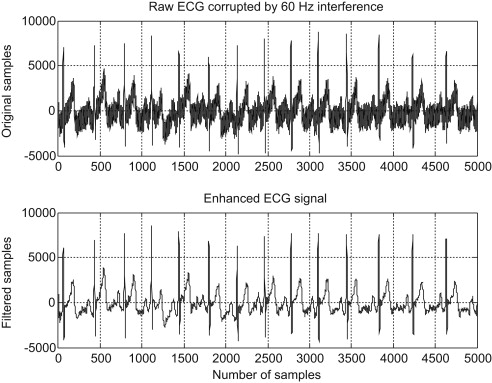 Notch Frequency - an overview   ScienceDirect Topics