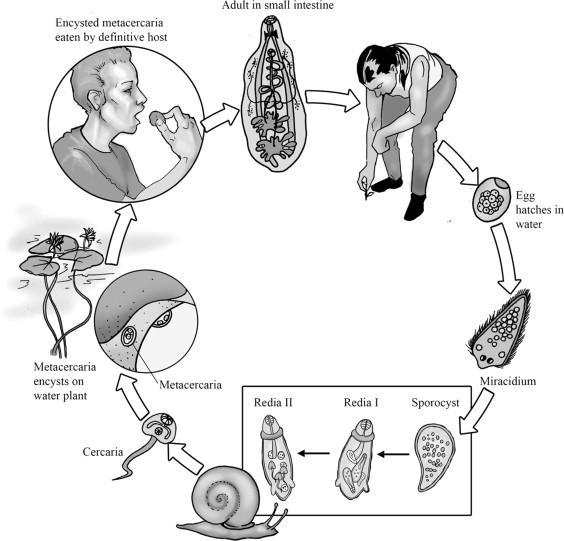 Fasciolopsis Buski - an overview   ScienceDirect Topics