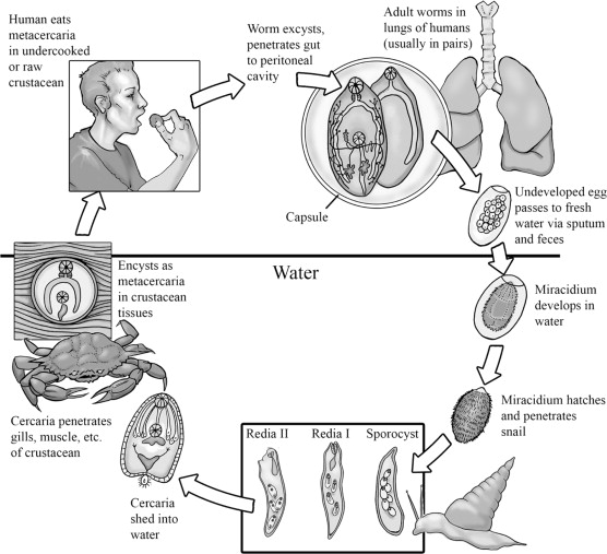 Lung Flukes - an overview | ScienceDirect Topics
