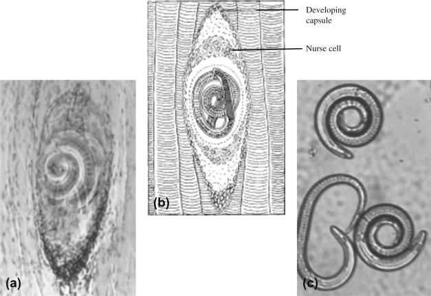 trichinella ascaris paraziták fotó és név