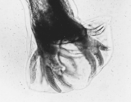 Ancylostoma Duodenale - an overview | ScienceDirect Topics