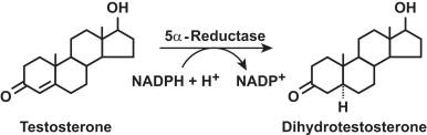 5α-Reductase