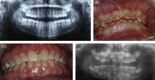 Dentinogenesis Imperfecta - an overview | ScienceDirect Topics