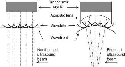 Resonant Transducer - an overview | ScienceDirect Topics