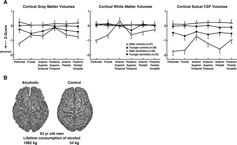 Cognition And Behavior White Matter >> Blunted Affect An Overview Sciencedirect Topics
