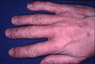 Hand Eczema - an overview | ScienceDirect Topics