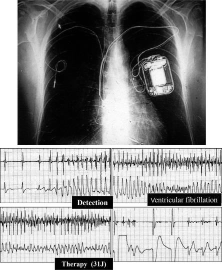 Pathology of Sudden Death, Cardiac Arrhythmias and