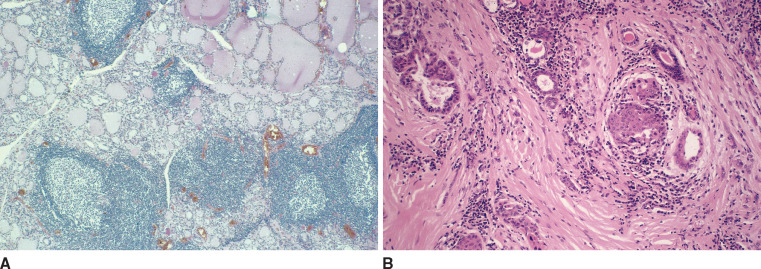 basedow graves pathology outlines