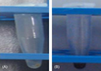 Mercury Pollution and Bioremediation—A Case Study on