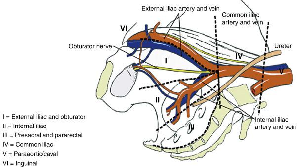 External Iliac Lymph Nodes - an overview   ScienceDirect Topics