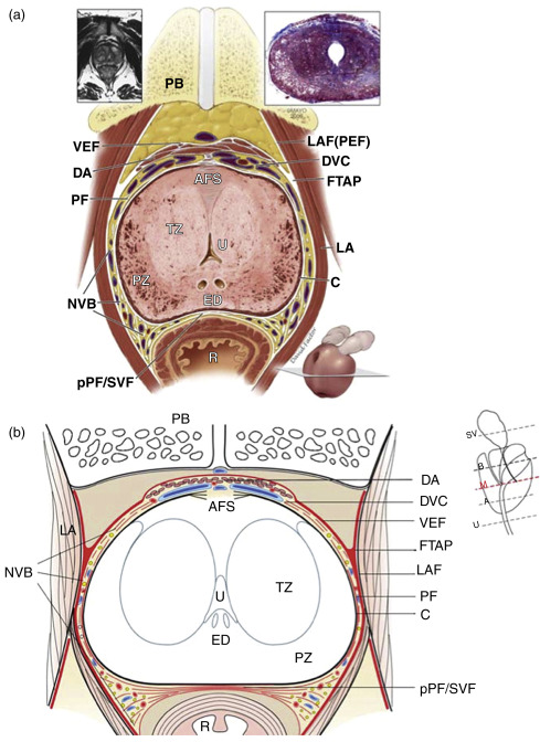 The Surgical Anatomy Of The Prostate Sciencedirect