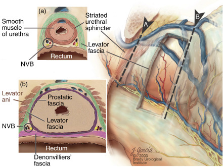 Anterior Approach To Robotic Radical Prostatectomy Sciencedirect