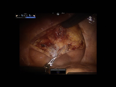 Posterior Approach To Robotic Assisted Laparoscopic Radical