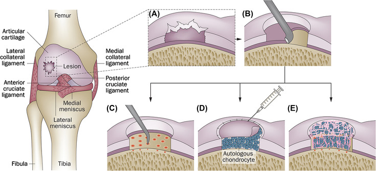 Hyaline Cartilage An Overview Sciencedirect Topics