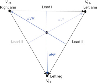 Electrocardiographic Lead An Overview Sciencedirect Topics
