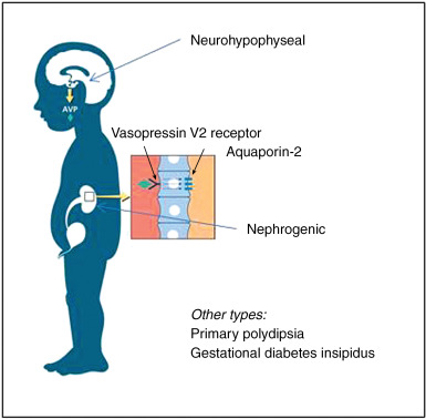 Diabetes Insipidus - an overview | ScienceDirect Topics