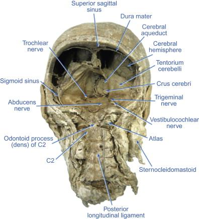 Vestibulocochlear Nerve - an overview | ScienceDirect Topics