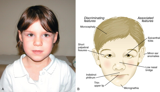 Congenital Malformation - an overview | ScienceDirect Topics