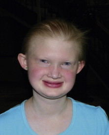 Hypohidrotic Ectodermal Dysplasia - an overview