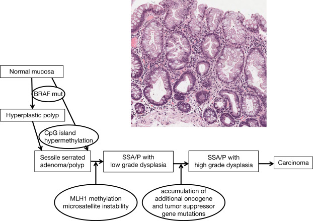 Rectum Adenoma An Overview Sciencedirect Topics
