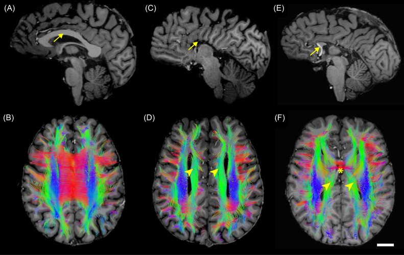 Cortical Architecture, Midline Guidance, and Tractography of