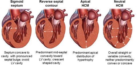 hypertrophic cardiomyopathy in the era of genomic medicine