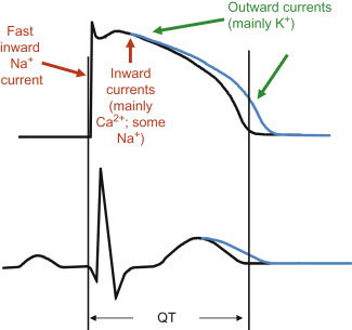 Congenital Long-QT Syndrome - an overview   ScienceDirect Topics