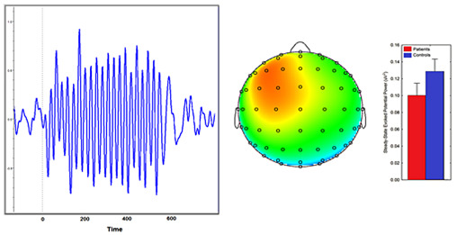 Electroencephalography - an overview | ScienceDirect Topics