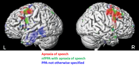 Brain Imaging Studies Seek Signs Of >> Structural Magnetic Resonance Imaging An Overview