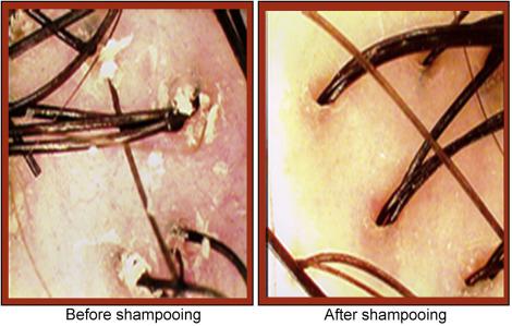 Shampoo - an overview | ScienceDirect Topics
