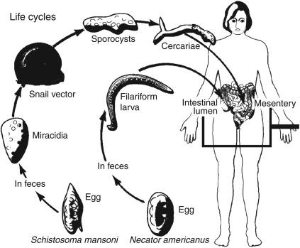 Helminthiasis degene nu - szorftabor.hu