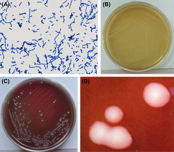 Can Oral streptococcus scandal!