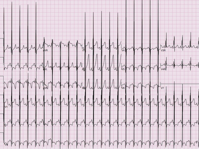 Heart Failure in the Neonate - ScienceDirect
