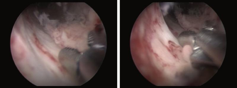 Hpv urethral cancer, Hpv urethra treatment