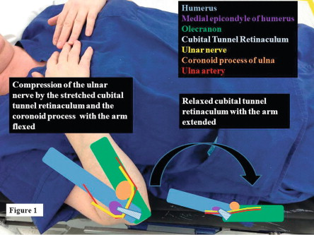 Perioperative Peripheral Nerve Injuries Associated with