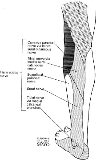 Sural Nerve - an overview | ScienceDirect Topics
