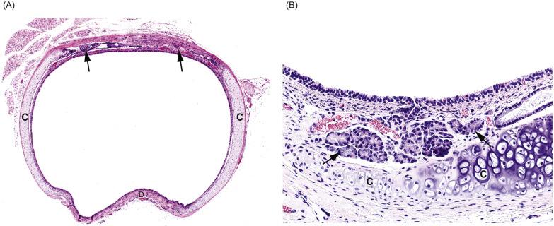the cartilaginous skeleton of the bronchial tree vanpeperstraete f