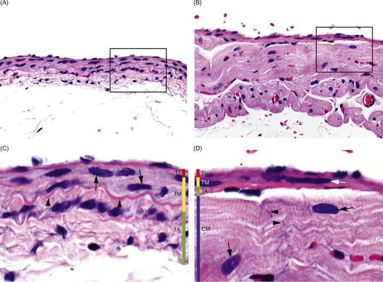 Elastic Artery An Overview Sciencedirect Topics